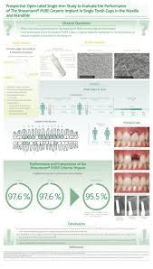 33 best dental implants images on pinterest dental implants