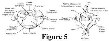 Anatomy Of Vertebral Body Fig5b Jpg