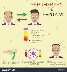 effective treatment age hair loss men stock vector 601441652