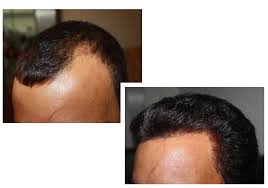 how thick is 1000 hair graft best hair transplant centre in indore madhya pradesh