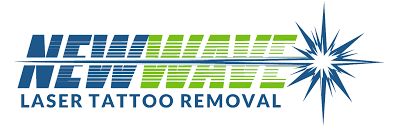 tattoo removal frequently asked questions laser tattoo removal frequently asked questions new wave