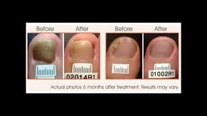 how to get rid of toenail fungus how to get rid of toe fungus