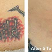 100 laser tattoo removal south jersey laser tattoo removal