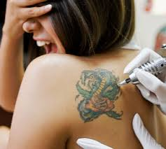 infected tattoo images before and after symptoms how to treat