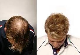 shane warne hair transplant the all hair transplant team bigfooty afl forum