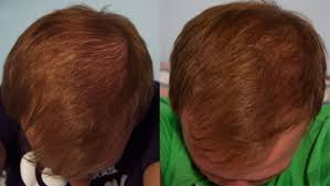 rogaine for women success stories success after 3 months on finasteride hairlosstalk forums