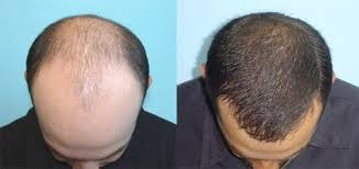transplant hair second round draft does hair transplant surgery last a lifetime quora