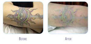 tattoo removal glow med spa