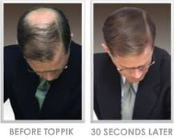 male hair extensions before and after thin hair solutions hairstyling for thin hair thin hair stylist