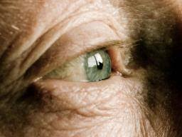 Can Cataracts Lead To Blindness Cataracts Causes Symptoms And Treatment
