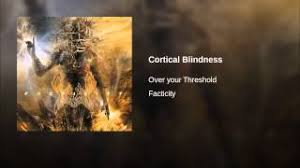Define Cortical Blindness Cortical Blindness Resource Learn About Share And Discuss