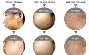 Light Therapy For Skin Bio Sunny Light Therapy For Versatile Skin Treatments Ce Iso