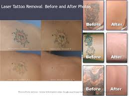 laser tattoo removal q switched ndyag