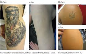 tattoo removal medical laser treatment at exeter medical exeter