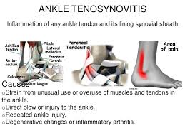 Tendon Synovial Sheath Ankle And Foot Pain