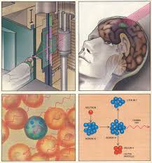 neutron capture therapy of cancer wikipedia