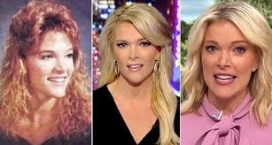 today show haircuts sg megyn kelly today show nose job plastic surgery haircut