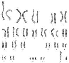 chromosomal diseases step1 biochemistry step 1 medbullets com