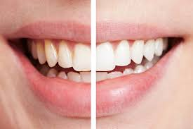 this amazing recipe will naturally whiten your teeth in just 2