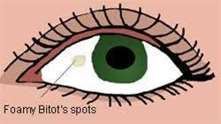 Symtoms Of Blindness Eye Health Online Course Module 4 The Scourge Of Eye Health