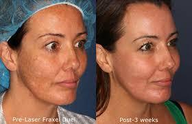 skin bumps after sun exposure services us dermatology partners i got
