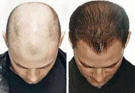 membuat minyak kemiri untuk rambut botak jual minyak kemiri asli 100