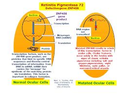 Night Blindness Information Retinitis Pigmentosa 72 Hereditary Ocular Diseases
