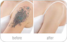 tattoo camo before and after rio skin camouflage make up concealer for tattoo scar birthmark