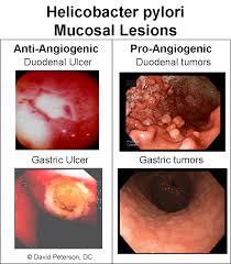 autoimmune thyroid disease and h pylori infection wellness