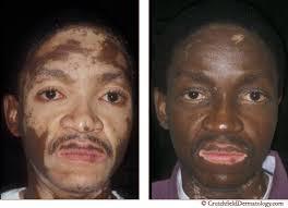 uvb light therapy for vitiligo vitiligo vitiligo doctor vitiligo treament cure vitiligo