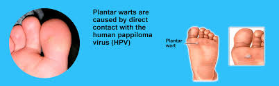How To Remove Planters Warts by What Causes Plantar Warts Understanding Why They Appear On Your Feet