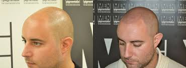 pics of scalp micropigmentation on people with long hair scalp micropigmentation smp belfast northern ireland