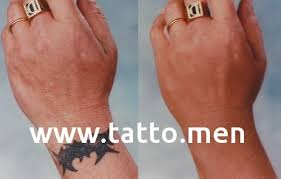 tattoo camo before and after 84 tattoo concealer trending 2018 tatto