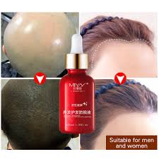 aliexpress com buy hair oil hair care fast powerful hair growth