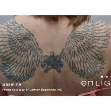 blink tattoo removal bellevue wa kristin tarbet m d