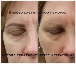 after the 2nd treatment erased tattoo removal las vegas www