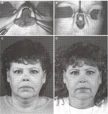 term follow up of repair of external nasal deformities in
