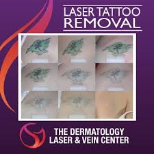 1792 best laser tattoo removal news images on pinterest laser