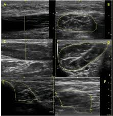 reliability of ultrasound to measure morphology of the toe flexor