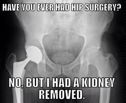 Xray Meme - 611 best xray images on pinterest radiology humor rad tech and