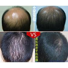 Hair Loss Cure For Women Aliexpress Com Buy New High Effective Faster Grow 5 Minoxidil