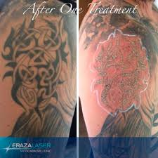 best tattoo removal for red ink best tatto 2017