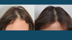 Injection In Scalp For Hair Growth Hair Restoration Hair Transplant Surgery For Women In New York