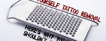 extreme do it yourself tattoo removal skin renew laser tattoo removal