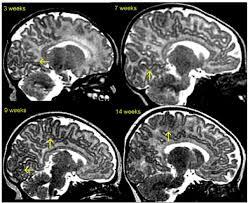 Sagittal Brain Mri Anatomy Infant Brain Maturation Across Age In T2w Mri These Sagittal