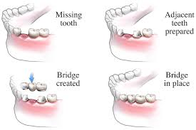 dental bridge procedure healthdirect
