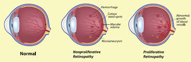 Diabetic Blindness Diabetic Retinopathy Winnipeg Health Region