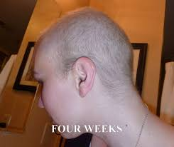 hairstyle for when hair grows back after chemo anncredible hair growth progression after chemo six months with