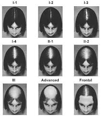 thinning hair in women on top of head world hair research blog archive women s ludwig other hair