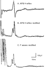 Biceps Reflexes Clinical Uses Of H Reflexes Of Upper And Lower Limb Muscles
